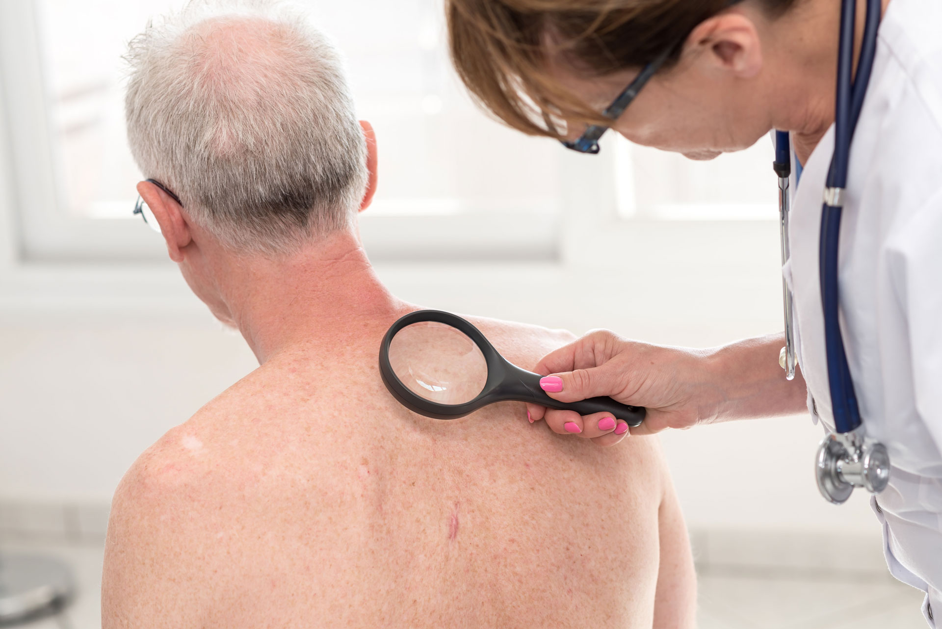 The USA Has a Serious Problem with Skin Cancer